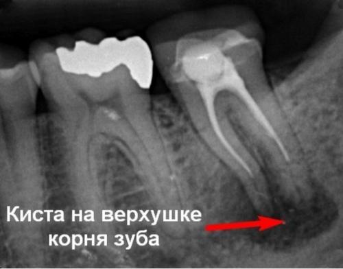 4-lechenie-kisty-zuba.jpg